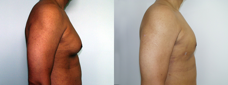 gynecomastia surgery before after. Before and After Photo Gallery