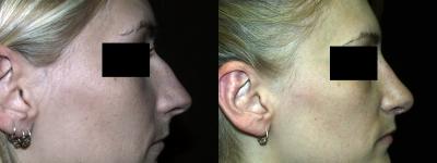 rhinoplasty-chevy-chase