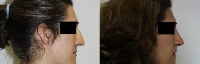 rhinoplasty-maryland