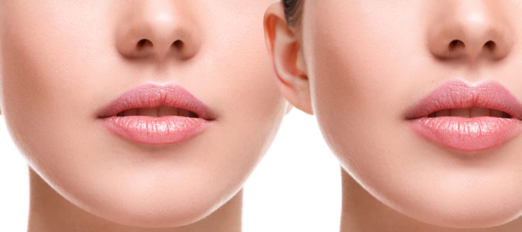 Lip Injections - Lip Augmentation