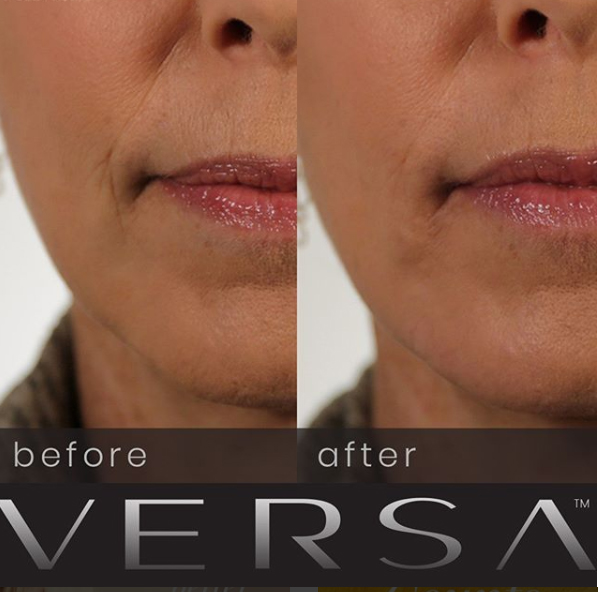 Lip Injections VERSA (REVANESSE) Easton, Maryland