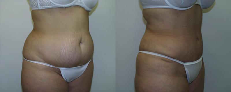 abdominoplasty-maryland